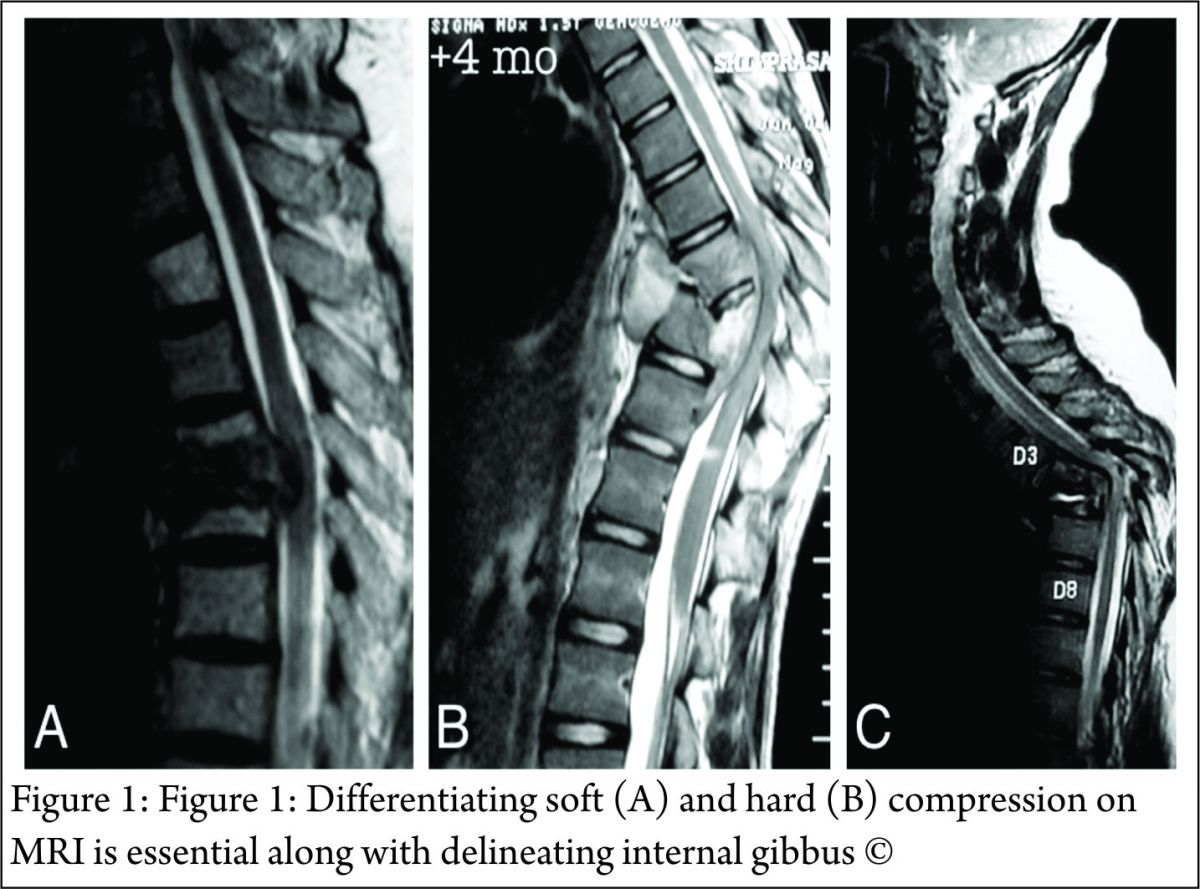 Spinal tuberculosis – an update