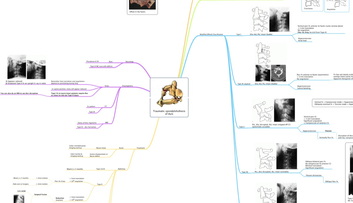 Hangman's fracture – mind map